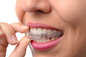 Orthodontist - Invisalign Braces